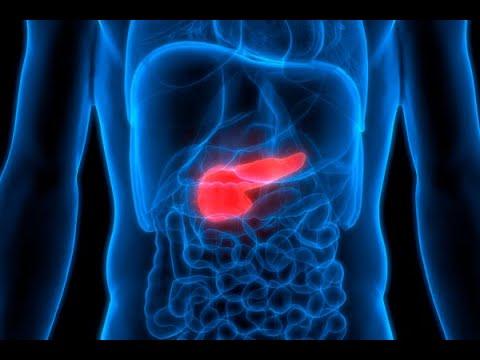 PLANETA MUY – ¿Qué relación hay entre la diabetes y el cáncer de páncreas?